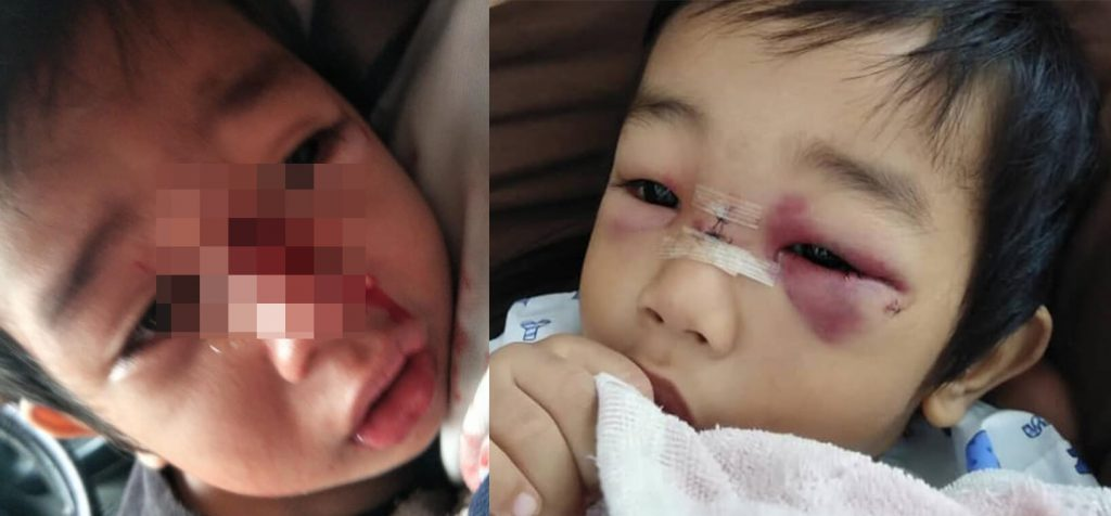 An injured child with bruised eyes and a cut nose, caused by a slip and fall accident near the staircase.